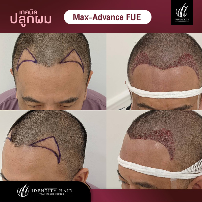 FUE-Review1
