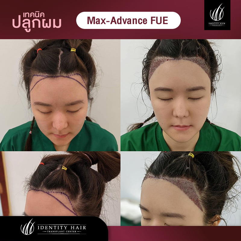 FUE-Review3
