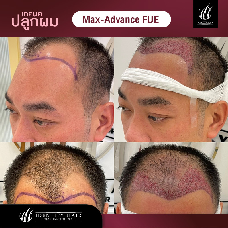 FUE-Review7